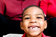 boy_missing_front_tooth